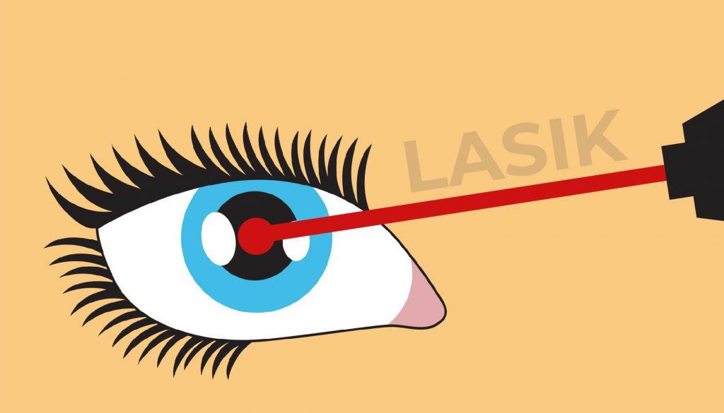 Laser lasik