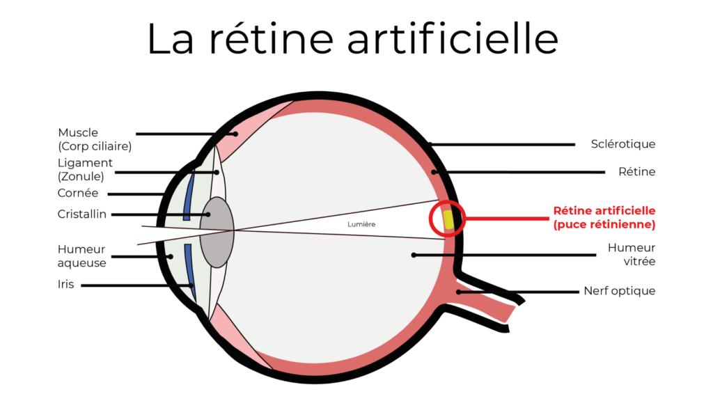 Schéma de la puce rétinienne